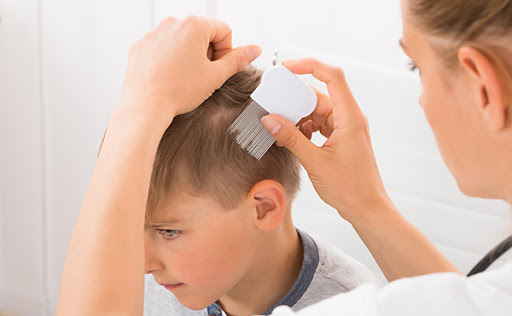 Tips to prevent head lice